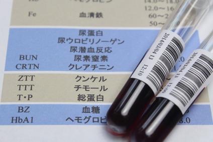 健康診断で大病を予防する