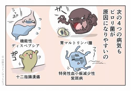 次の4つの病気もピロリ菌が原因になりやすいの