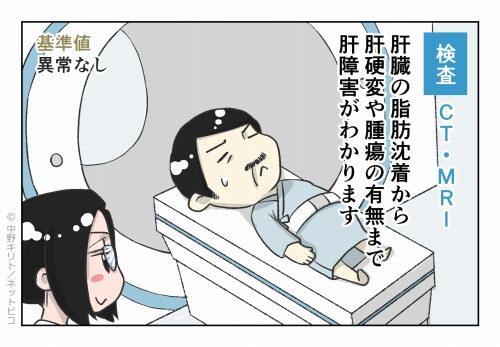 検査 CT・MRI