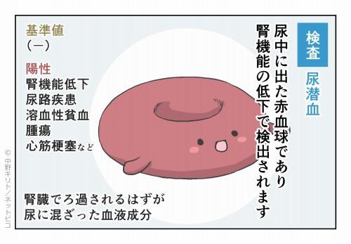 検査 尿潜血