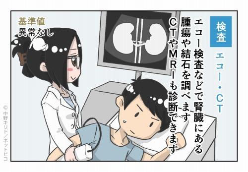 検査 エコー・CT