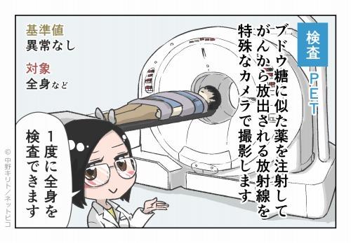 検査 PET