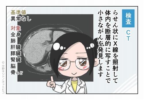 検査 CT