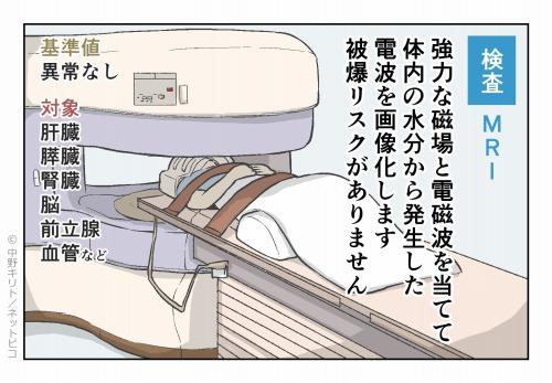 検査 MRI