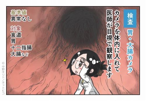 検査 胃・大腸カメラ