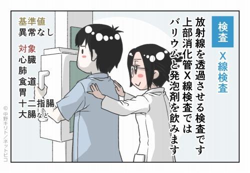 検査 X線検査