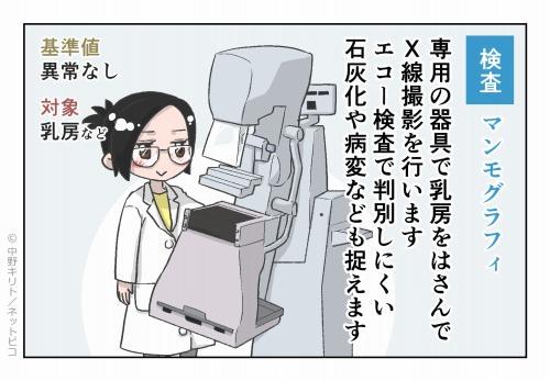 検査 マンモグラフィ