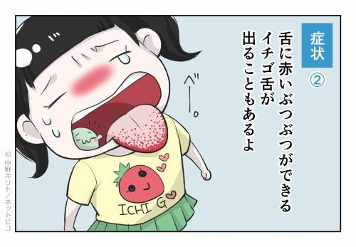 症状② 舌に赤いぶつぶつができるイチゴ舌が出ることもあるよ