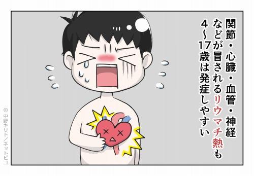 関節・心臓・血管・神経などが冒されるリウマチ熱も4~17歳は発症しやすい