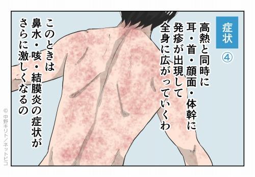 症状④ 高熱と同時に耳・首・顔面・体幹に発疹が出現して 全身に広がっていくわ