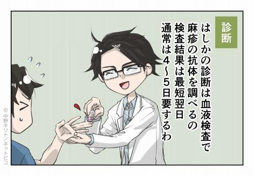診断 はしかの診断は血液検査で麻疹の抗体を調べるの