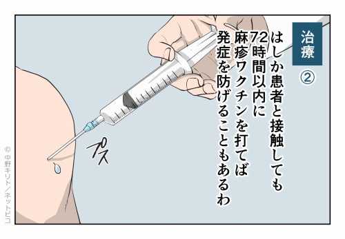 治療② はしか患者と接触しても72時間以内に麻疹ワクチンを打てば 発症を防げることもあるわ