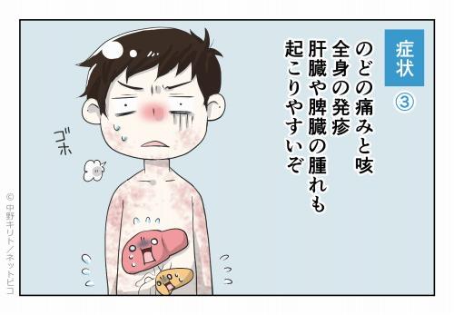 症状③ のどの痛みと咳 全身の発疹 肝臓や脾臓の腫れも起こりやすいぞ